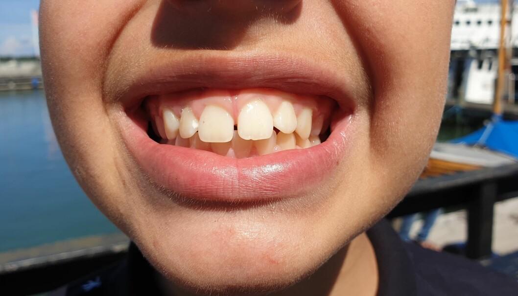Over halvparten av 12-åringene her i landet har ikke hull i tennene. foto: Albin. H. Ødegaard