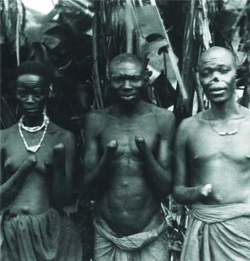Frå Kongo. Desse fekk hendene kappa av fordi dei ikkje produserte nok råvarer for kolonimakta (Kosmos, 2007, s. 120).